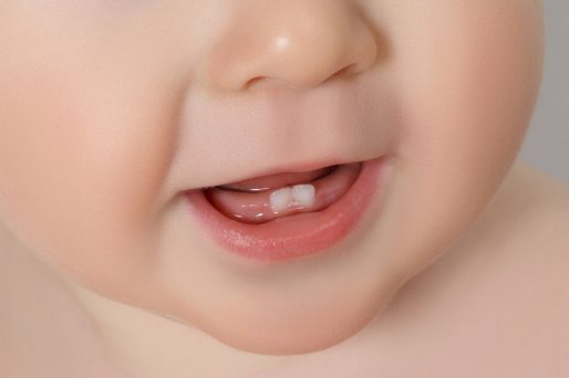 dolor de la dentición del bebé