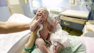 cordón enredado en el cuello del bebé