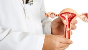 por qué se debe realizar una histerectomía