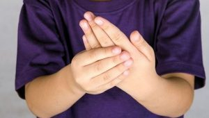 artritis en los niños